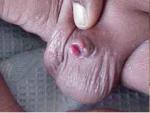 circ penile amputation