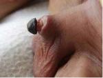 circ penile necrosis